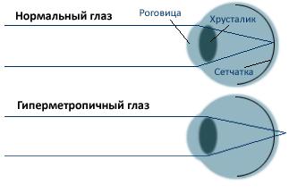 Гиперметропия. Нормальный глаз и гиперметропический глаз