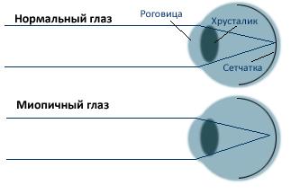 При миопии световые лучи от удаленных объектов формируются не на сетчатке, а впереди нее.